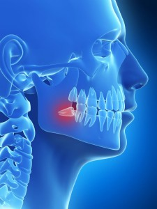 3d-rendered-illustration-of-the-wisdom-teeth-2